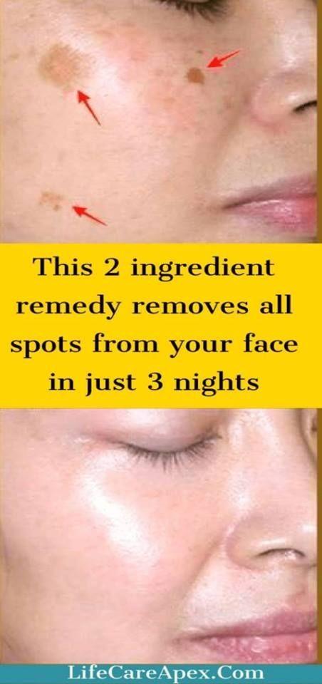 Removing facial brown spots