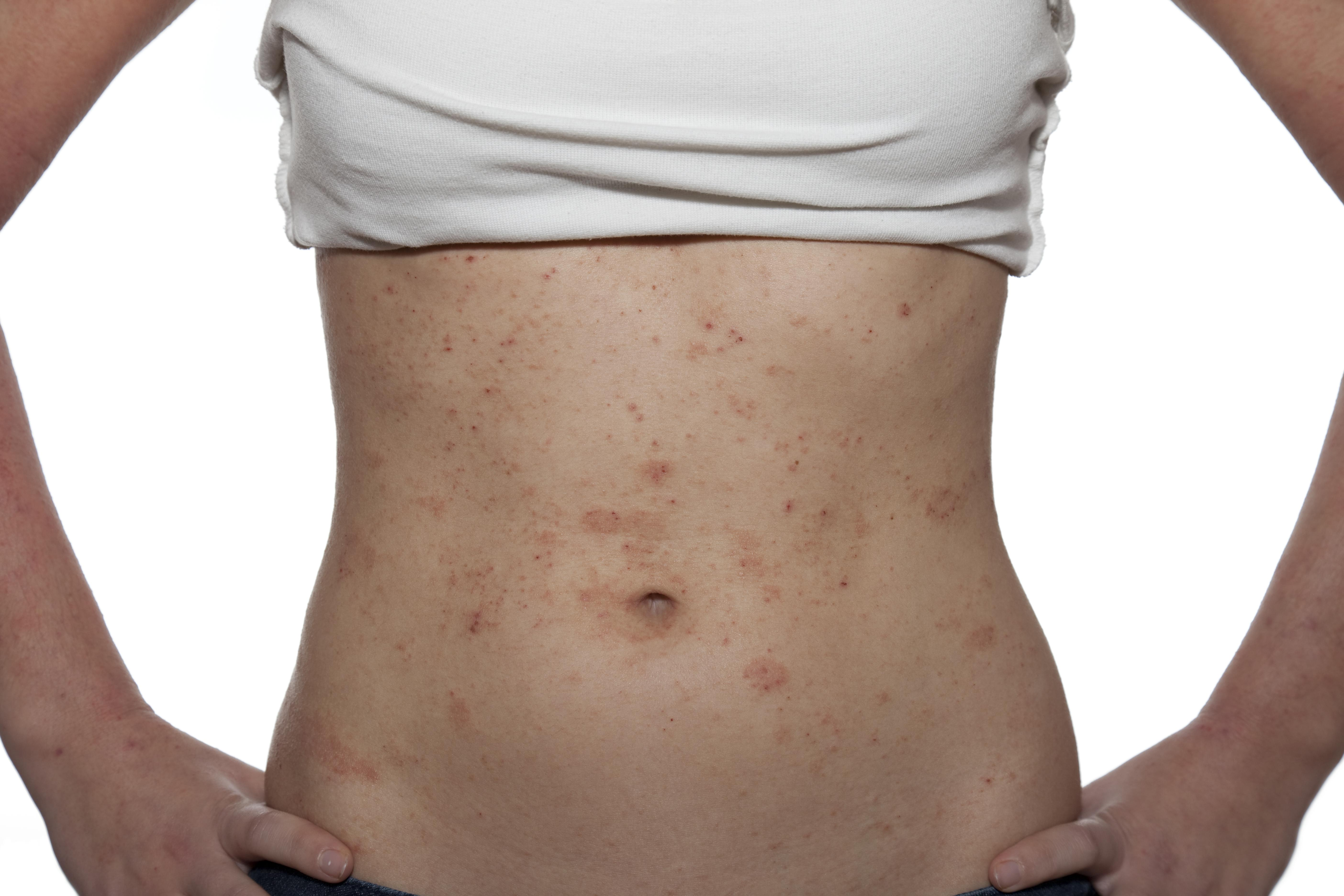 Identify a rash in adults