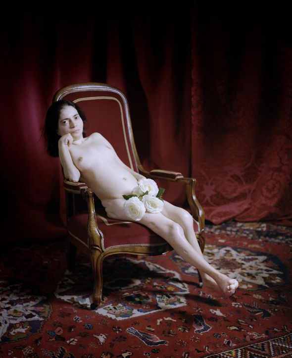 Nude woman with cerebral palsy