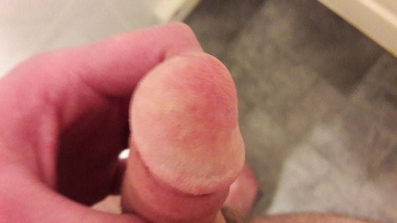Discoloration of the penis