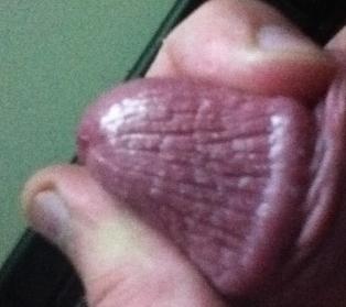 Dry skin on penis head