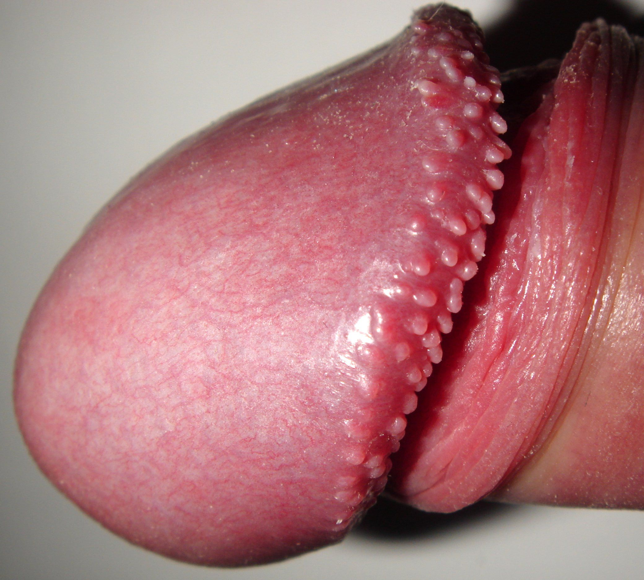 Red bumps on rim of penis
