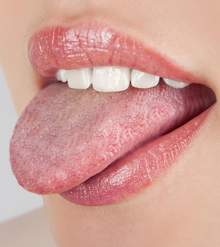 Thrush in cause oral adults what