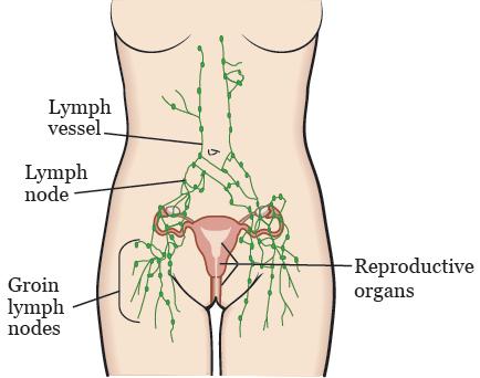 Lymph nodes on vagina